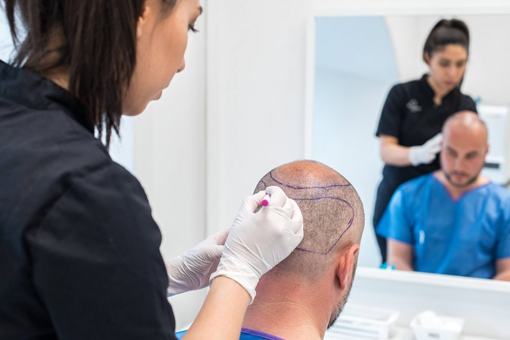 Transplantation area is drawn before hair transplant