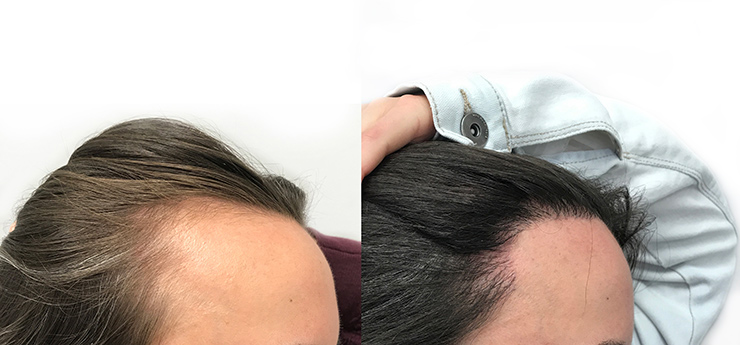 Before and after female patient hair transplant 2000 grafts