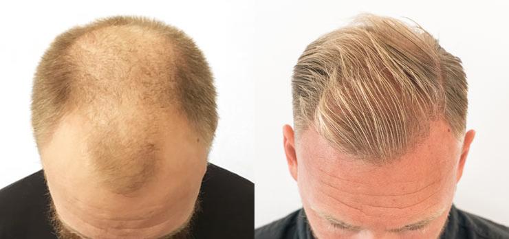 prp behandling hår stockholm pris