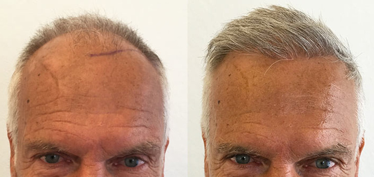 Before and after picture of a man with grey white hair after a hair transplant