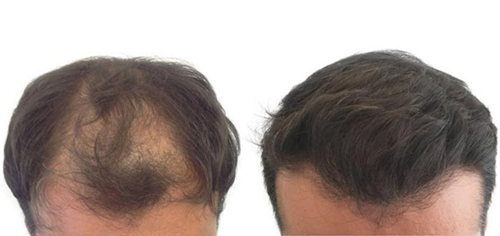 Before and after results photo a man middle aged with strong hair loss in crown