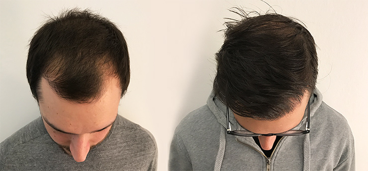 Before and after photo on male patient 3200 grafts