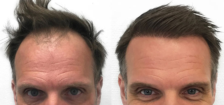Results of hair transplant on a middle aged man with dark brown hair