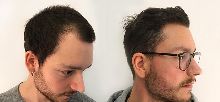 Before after hair transplantat 29 year old man 3000 grafts side