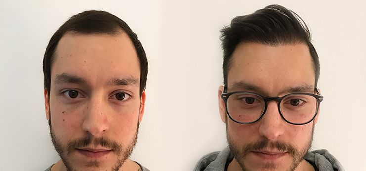 Before after hair transplantation 29 year old man 3000 grafts front