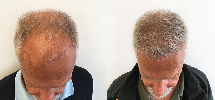 Before after man 67 years old hair transplant 3000 grafts above