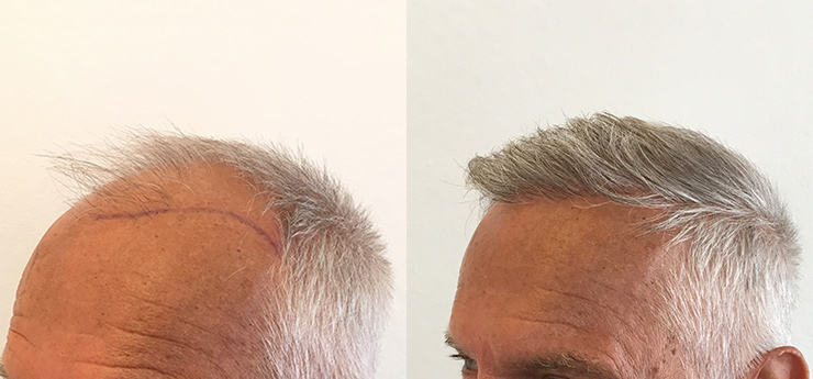 Before after man 67 years old hair transplantat 3000 grafts left side
