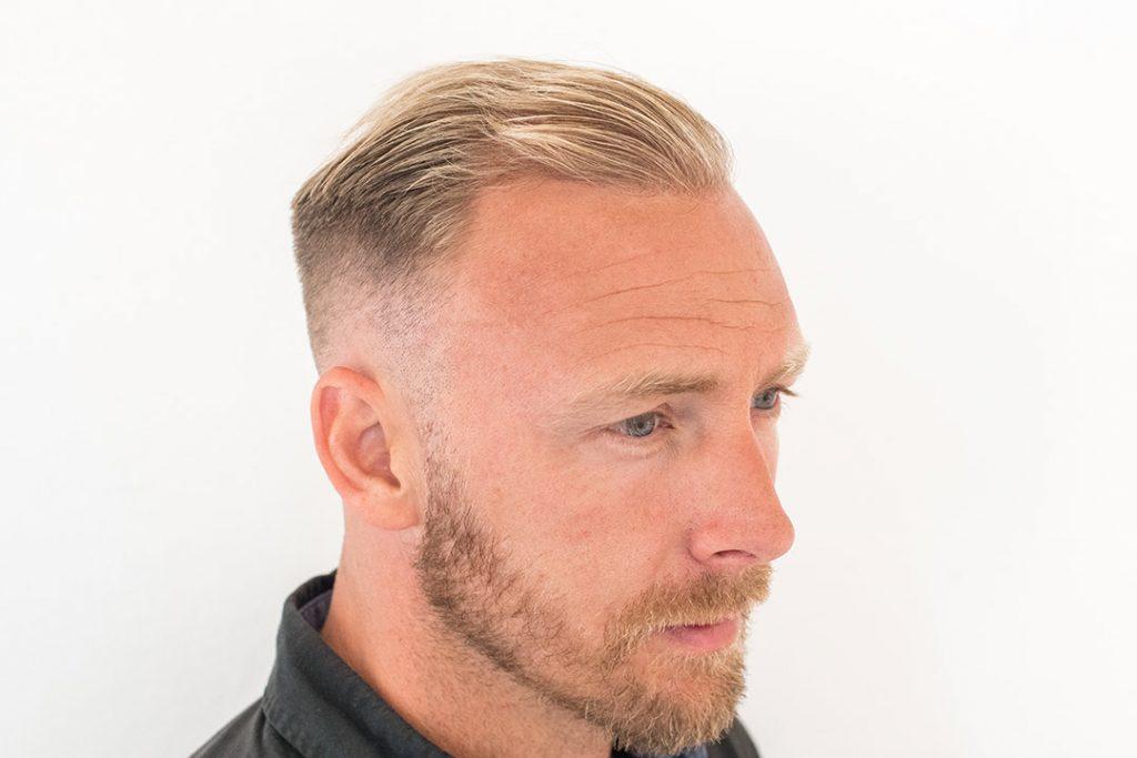 Daniel end result 12 months after hair transplant