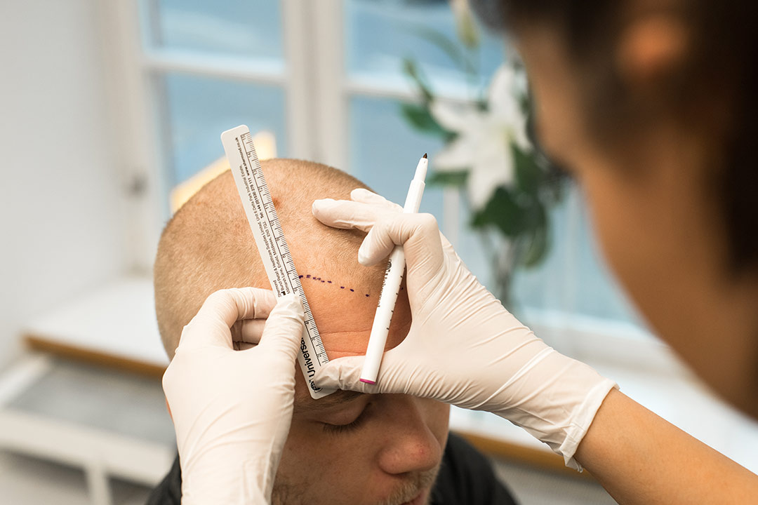 Hair technician measures out patient's new hairline ratio to forehead for natural results