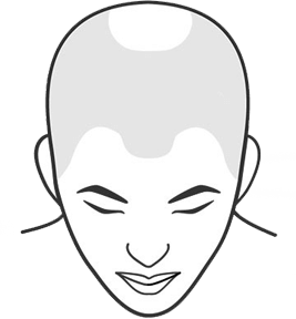 Illustration of a person with balding crown