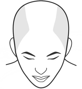 Illustration of a person with large bald area from crown to front