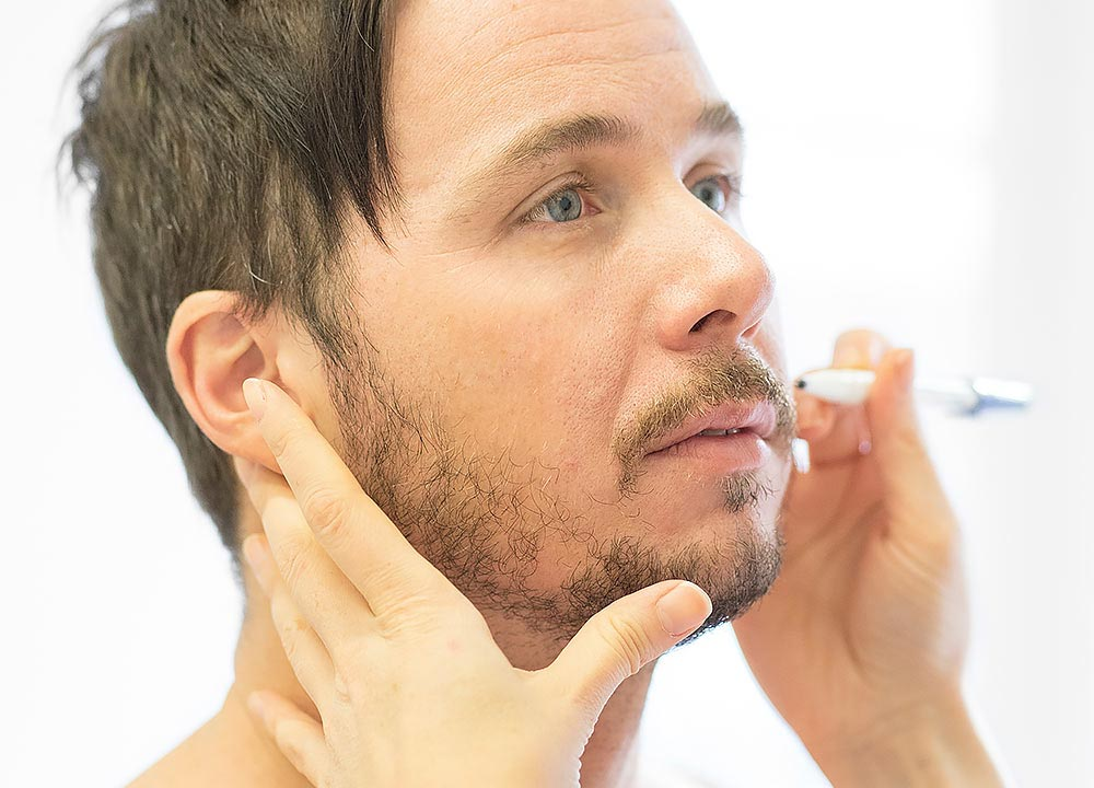 Man gets beard line drawn out on cheeks before beard transplant