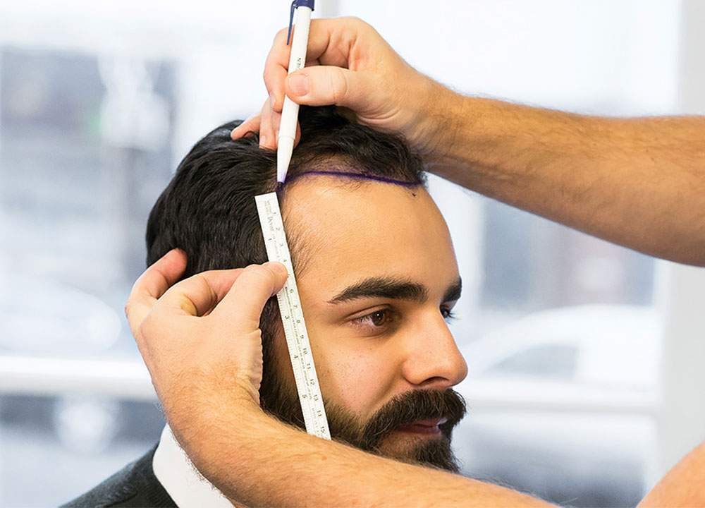 Man gets hairline measured