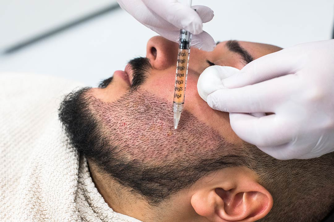 Man has PRP treatment on newly transplanted beard hair