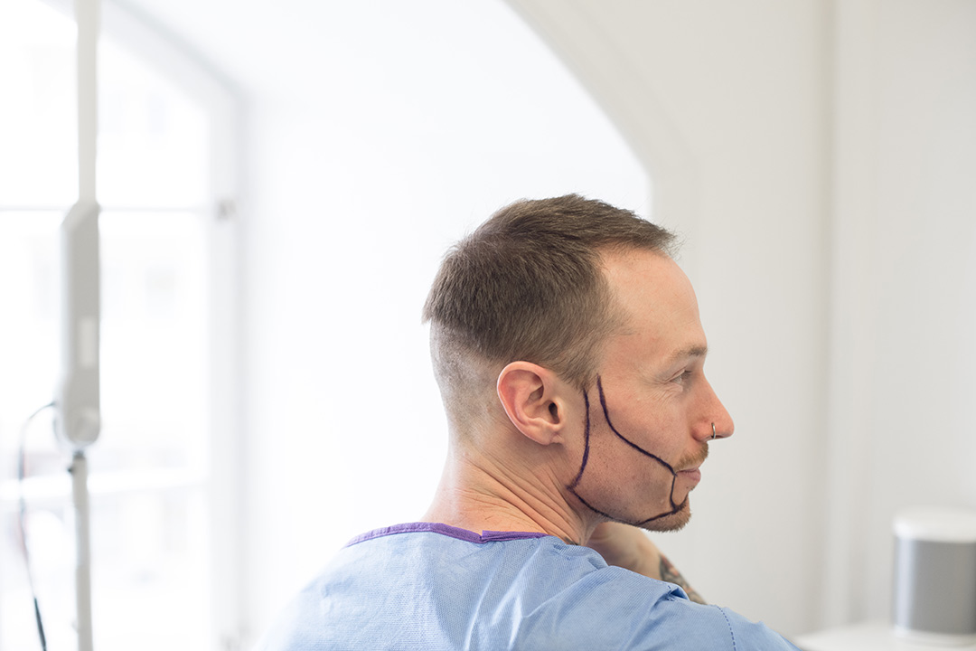 Man with shaved donation area and drawn beard line looks in mirror before transplantation