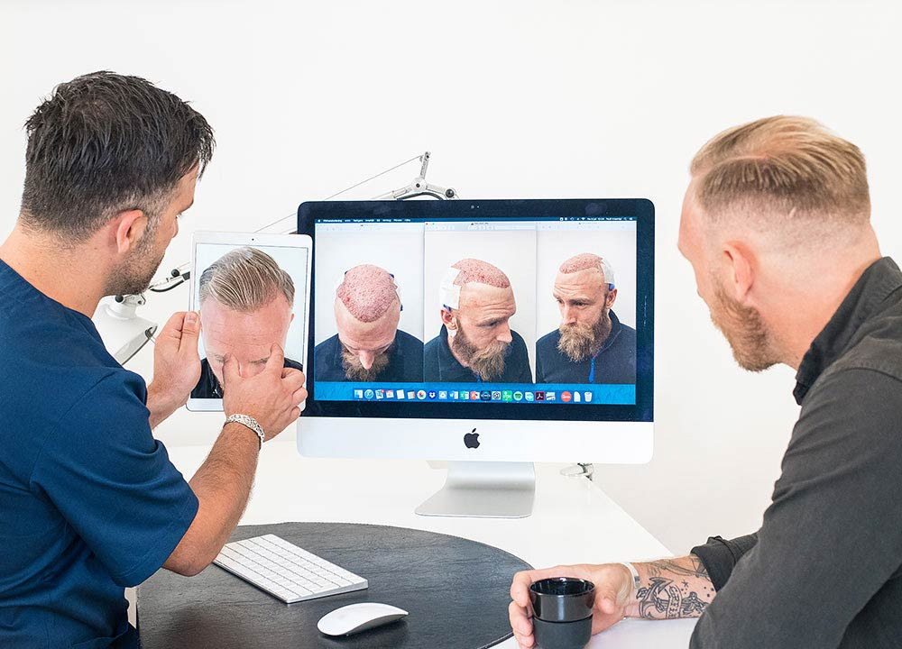 https://nordichairinternational.com/wp-content/uploads/2019/06/nordic-hair-staff-shows-patient-results-after-hair-transplant.jpg
