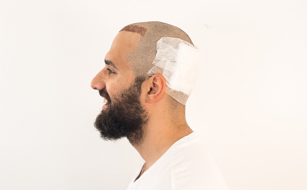 Patient with bandage around donor area after hair transplant